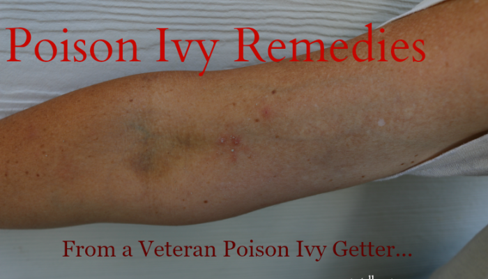 Poison Ivy Remedies  From a Veteran Poison Ivy Getter